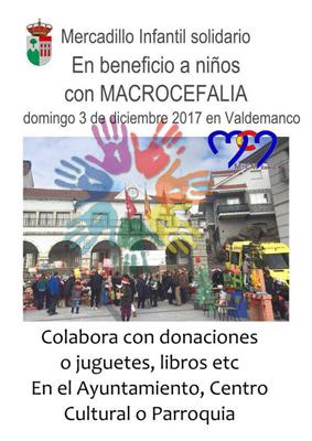 ValdemancoMacrocefalia17